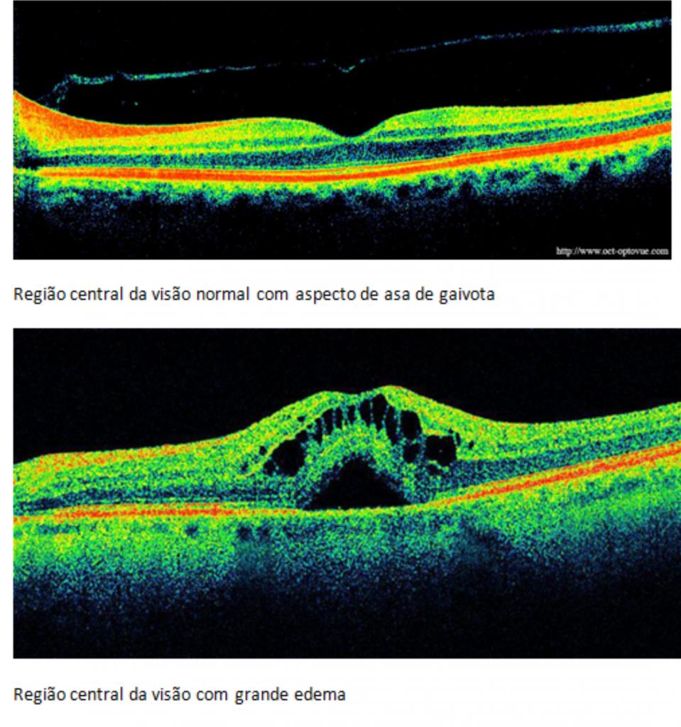 tomografia retina